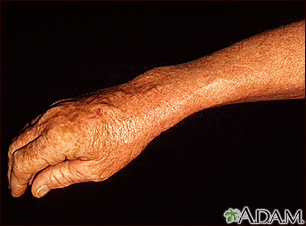 Lentigo, solar with erythema on the arm
