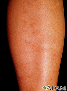 Polyarteritis, microscopic on the shin