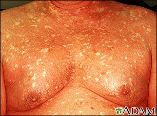 Pityriasis rubra pilaris on the chest