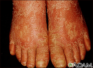 Pityriasis rubra pilaris on the feet