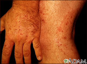 Ringworm, tinea on the hand and leg