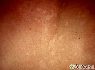 Tinea versicolor - close-up