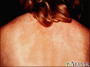 Tinea versicolor on the back