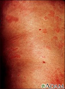Hives (urticaria) on the trunk