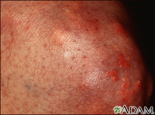 Xanthoma on the knee