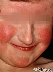 Dermatitis, atopic on a young girl's face