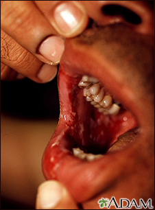 Pemphigus, vulgaris - lesions in the mouth