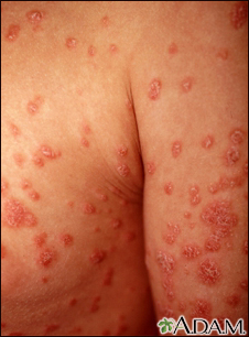 Psoriasis, guttate on the arms and chest