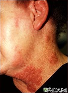 Herpes zoster (culebrilla) en cuello y mejilla