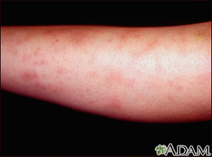 Erythema nodosum associated with sarcoidosis
