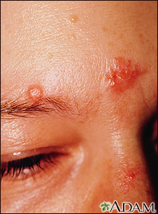 Sarcoidosis on the nose and forehead