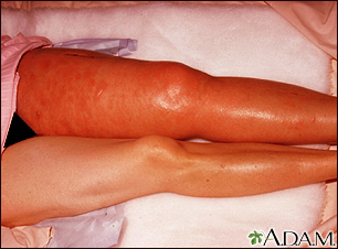 Deep venous thrombosis, ileofemoral