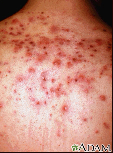 Acne, close-up of cysts on the back