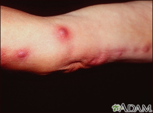Sporotrichosis on the arm