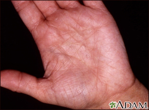 Hyperlinearity in atopic dermatitis