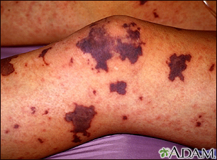 Meningococcemia on the leg