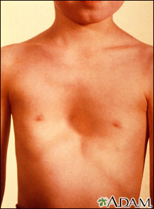 Pectus excavatum