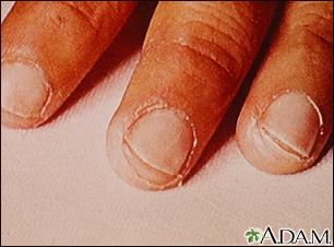 Enfermedad de Kawasaki, exfoliación de las puntas de los dedos