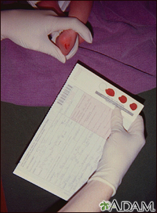 Phenylketonuria test
