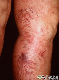 Telangiectasia - legs
