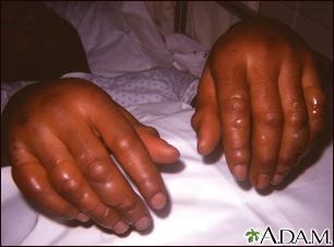 Congelación de las manos