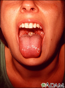 Mononucleosis - mouth