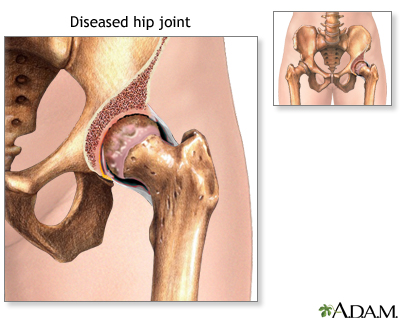 Diseased hip