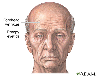 Visible signs of aging - Indication