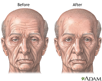 Before and after forehead lift - Aftercare