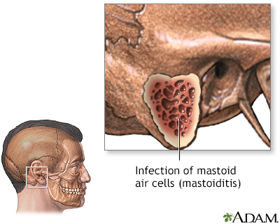 Mastoiditis