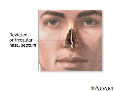 Septal deviation