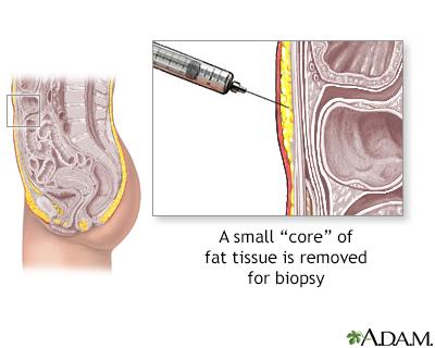 Biopsia de tejido graso