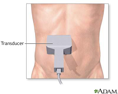 Ultrasonido abdominal