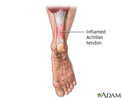 Inflammed achilles tendon
