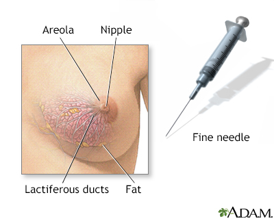 Female breast biopsy