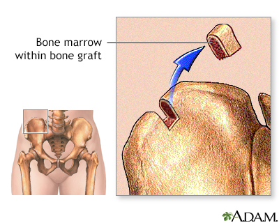 Bone marrow from hip