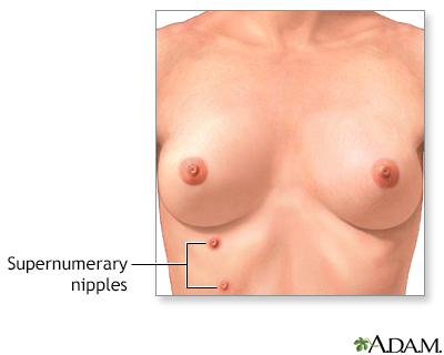 Supernumerary nipples
