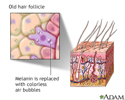 Aged hair follicle