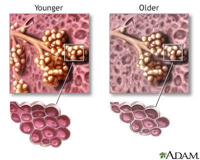 Changes in lung tissue with age