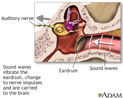 Sentido de la audición