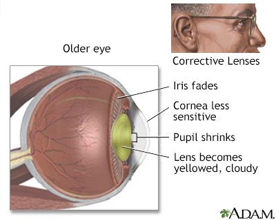 Aged eye anatomy