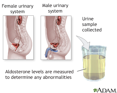 Aldosterone level test