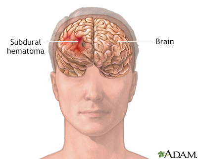 Subdural hematoma