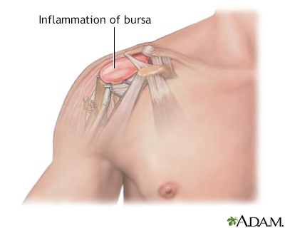 Bursitis of the shoulder