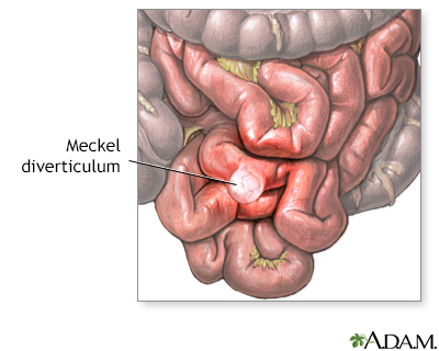 Meckels diverticulum