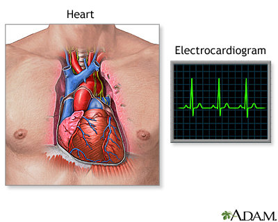 Electrocardiogram (ECG)