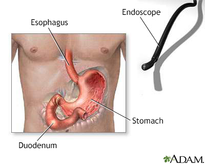 Gastric endoscopy