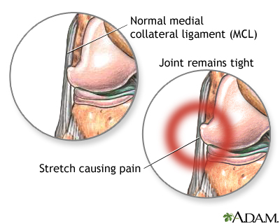 Lateral collateral ligament pain
