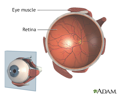 Retina
