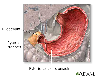 Pyloric stenosis